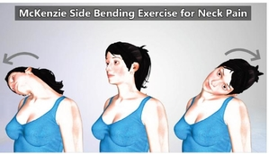 McKenzie Side Bending Exercise for Neck