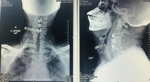 Hybrid Anterior Cervical Fusion and Disc Replacement .|Dr.Kiran Kumar Lingutla|Somajiguda,Hyderabad