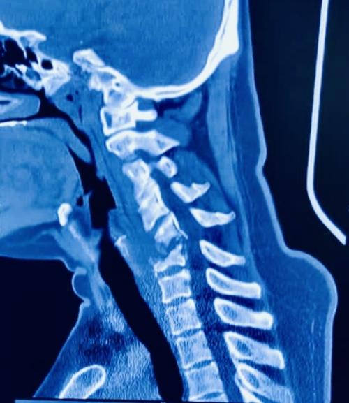 Complex Cervical Spine Surgery - Dr Kiran Lingutla|Dr.Kiran Kumar Lingutla|Somajiguda,Hyderabad