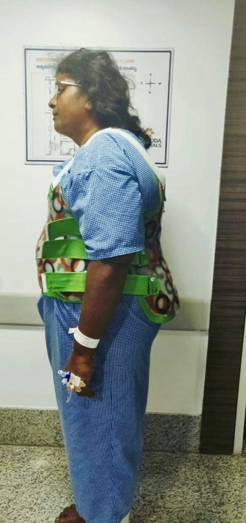 Post-Op Alignment|Dr.Kiran Kumar Lingutla|Somajiguda,Hyderabad